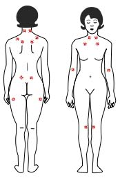 fibromyalgia tender points2 copy