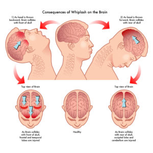 61991336 - whiplash effect on the brain can include TBI